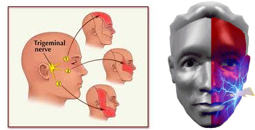 Image result for trigeminal pain